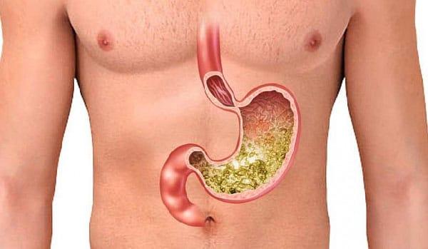 Хирургия желудка