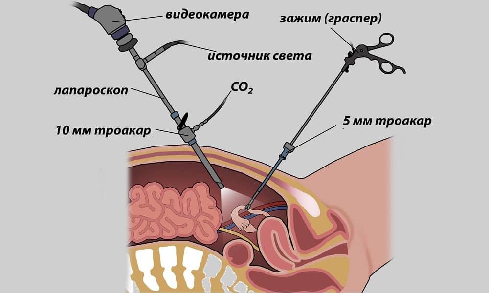 лапароскопия оперция