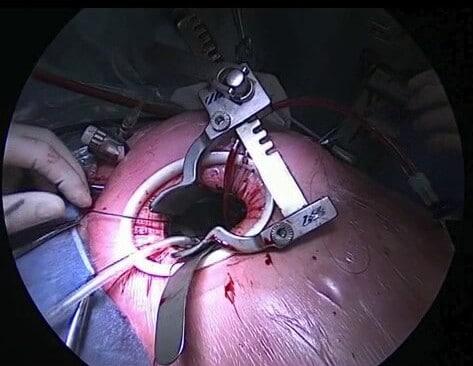 мини доступы в хирургии