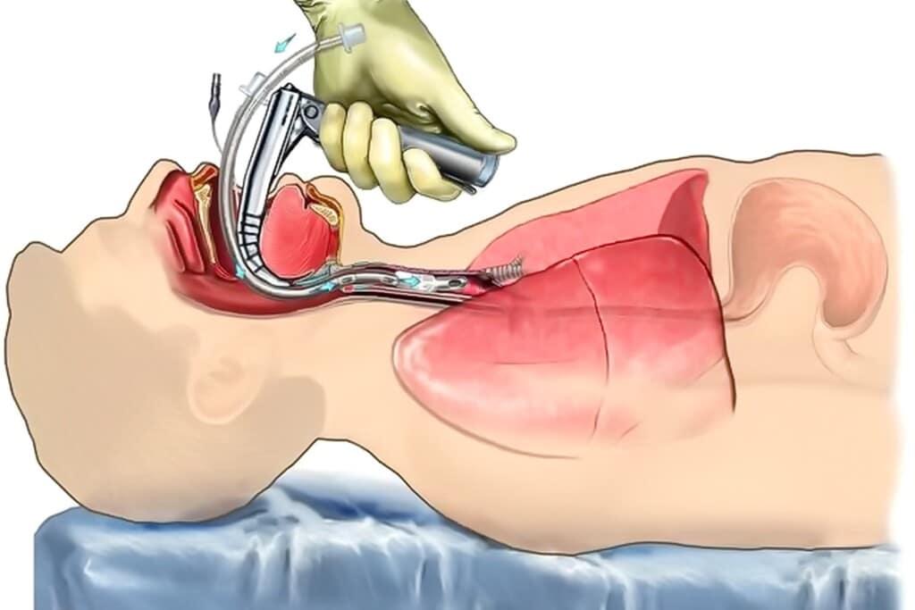 Вентиляция легких при торакоскопии