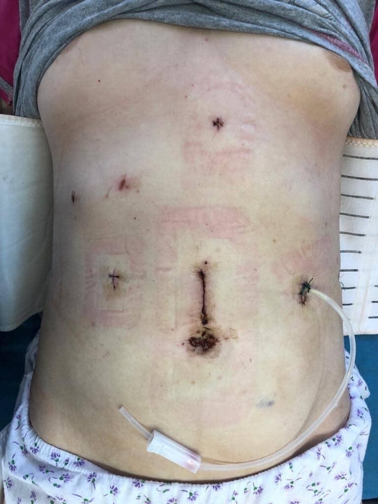 Раны после операции из мини-доступов