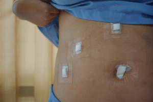 раны после холистэктомии
