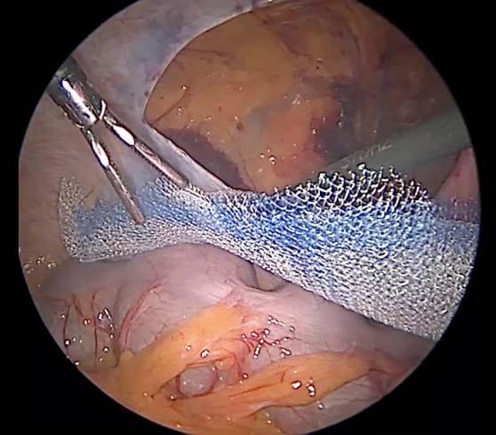 Установка сетчатого протеза по методике TAPP после рассечения и мобилизации брюшины