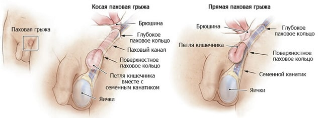 Виды паховых грыж: косая и прямая