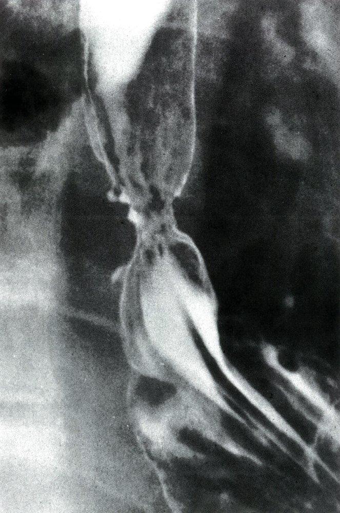 рентген рак пищевода