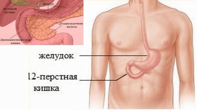 опухоль 12-перстной кишки