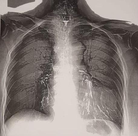 Остатки бария сульфата в бронхах у пациентки с пищеводно-бронхиальными свищами