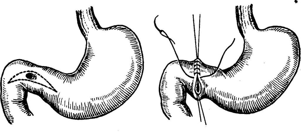 Ушивание язвы 12-ти перстной кишки
