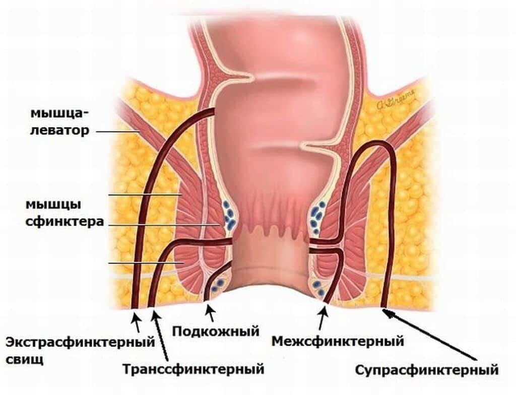 Классификация свищей толстой кишки