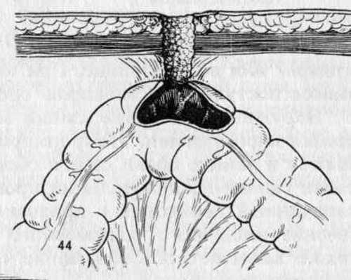 Сформированный трубчатый толстокишечный свищ