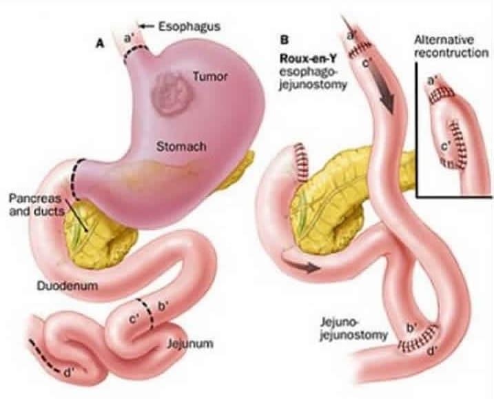 гастрэктомия