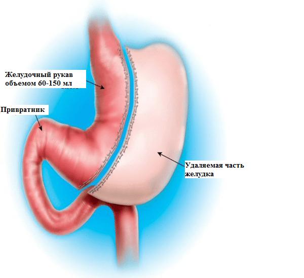 Рукавная (sleeve) продольная резекция желудка при морбидном ожирении